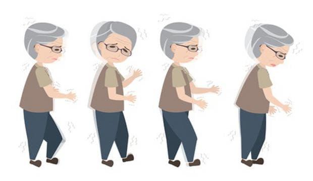 симптоми при болест на Паркинсон