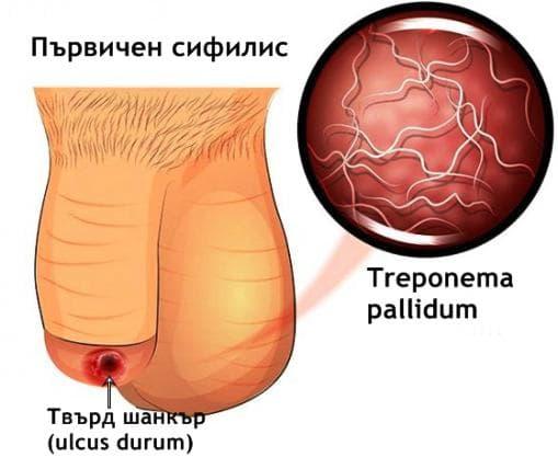 Първичен сифилис