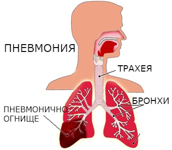 Анатомия пневмония
