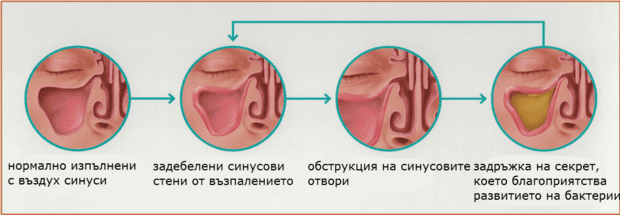 патофизиология на синузит