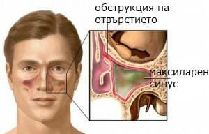 обструкция на синус