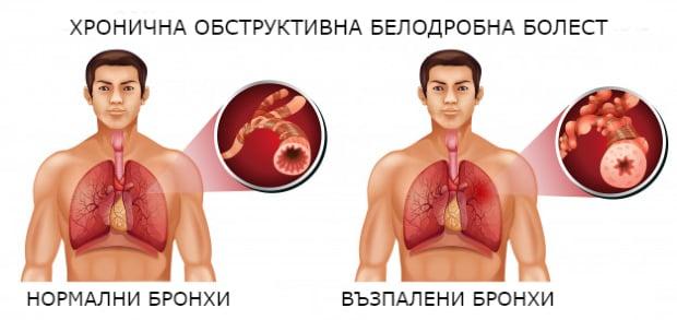 Патофизиология на ХОББ