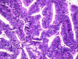 патологична хиперплазия