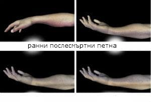 патоморфологични промени при биологична смърт