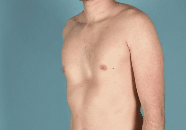 вродена аномалия на торакални кости