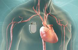 кардиостимулация