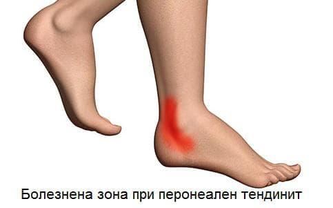 зона на болка при перонеален тендинит