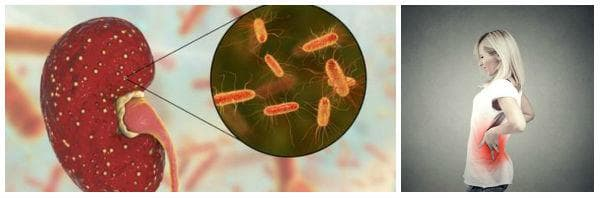 Пиелонефрит: видове (остър, хроничен), симптоми, усложнения
