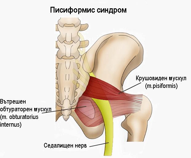 Писиформис синдром