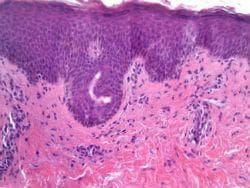 Хистопатология на питириазис розеа