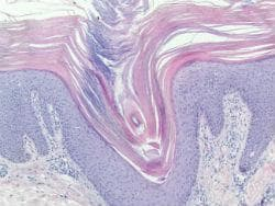 Хистопатология на питириазис рубра пиларис