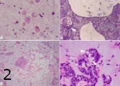 микроскопско изследване на плеоморфен аденом