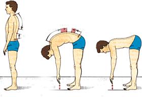 плосък гръбначен стълб