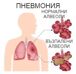Патогенеза пневмония