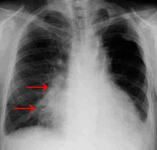 Рентгенография на гръден кош