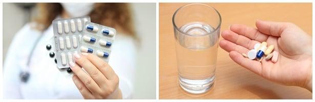Лекарства за лечение на подагра в междупристъпния период
