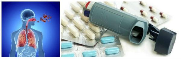 Полезни съвети за лечение и контрол на астма