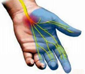Ревматоидният артрит със засягане на други органи и системи