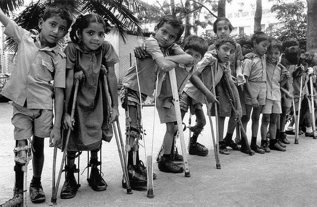 Деца, болни от детски паралич