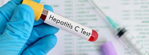 Поставяне на диагнозата при други остри вирусни хепатити