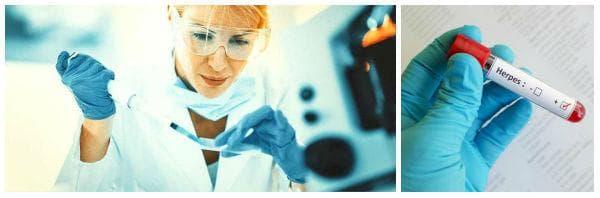 Поставяне на диагнозата при херпес симплекс инфекция