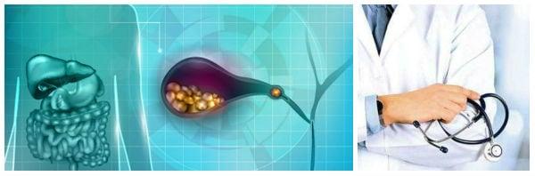 Поставяне на диагнозата при жлъчнокаменна болест