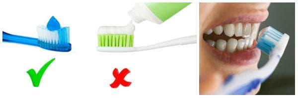 Правилно миене на зъбите