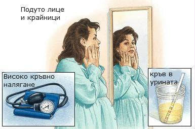 Симптоми на прееклампсия