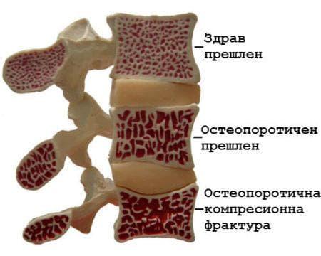 Фрактура на гръбначните прешлени