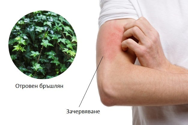 При обрив, причинен от отровни растения