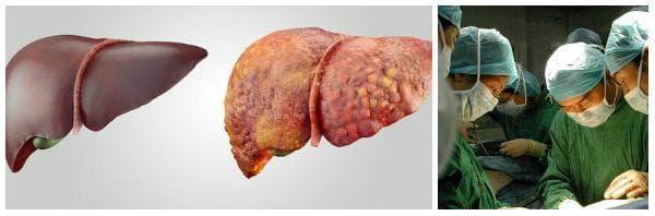 При кои заболявания и състояния се извършва трансплантация на черен дроб?