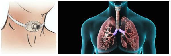При кои заболявания и състояния се поставя трахеостома?