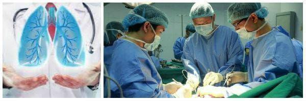 При кои заболявания се извършва трансплантация на бял дроб?