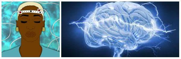 При кои заболявания се прилага лечение с електроконвулсивна терапия (електрошокова терапия)?