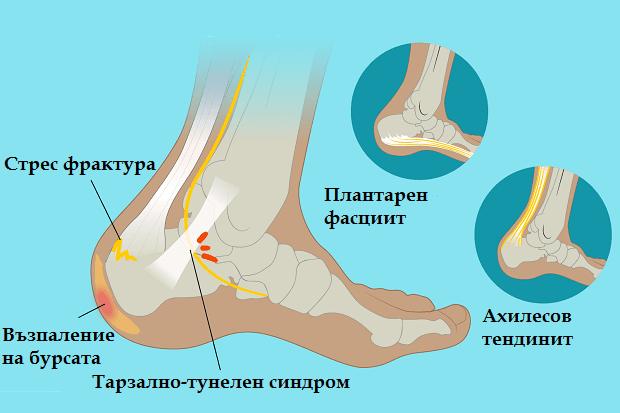 Причини за болка в петата