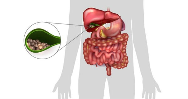 Причини и рискови фактори за развитие на холелитиаза