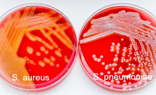 Бактериални причинители на синузит