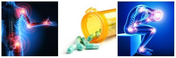 Приложение на COX-2 инхибиторите при болка и възпаление