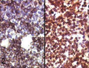 микроскопско изследване на примитивни невроектодермални тумори