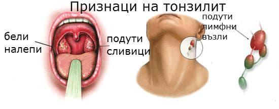 признаци на тонзилит