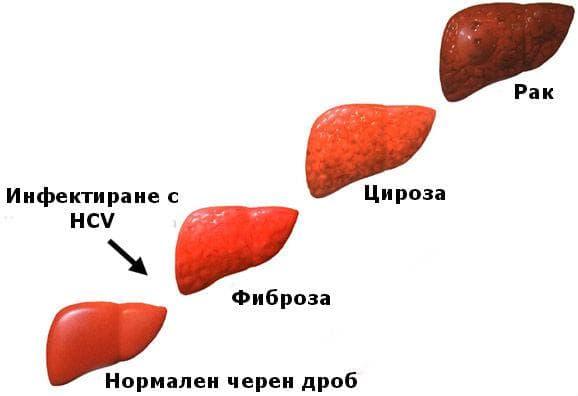 Прогресия на хепатит С инфекцията