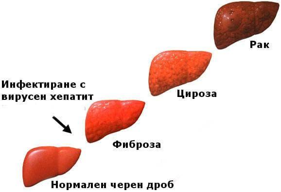 Прогресия на хроничен вирусен хепатит
