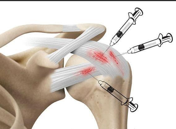Инжекции в рамото