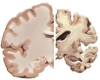 промени в мозъка при Алцхаймер