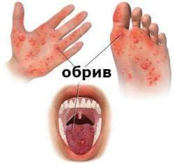 Прояви при ръка-крак-уста синдром