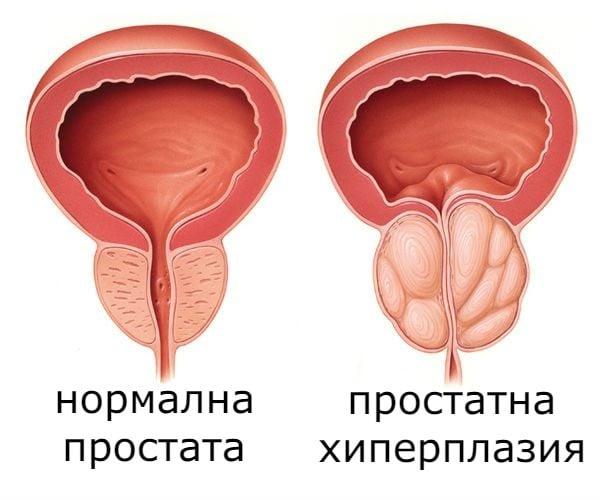 Простатна хиперплазия