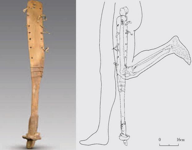 Схема на крачната протеза