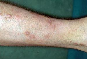 Prurigo simplex chronica