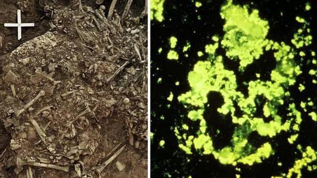 Отляво - кости от гробницата, отдясно - следите от бактерията
