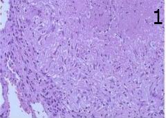 микроскопско изследване на първична туберкулоза